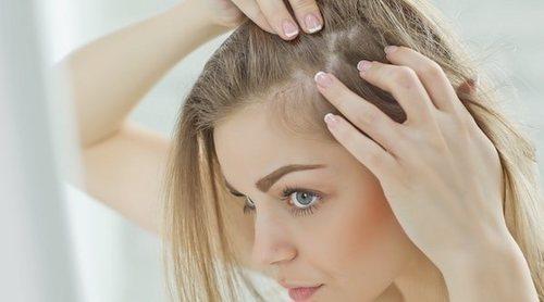 Alopecia femenina: mitos y realidades
