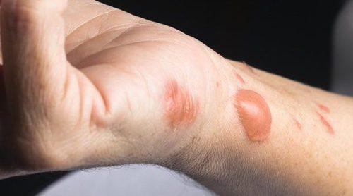 5 remedios caseros para las quemaduras de aceite