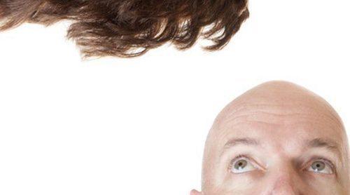 Peluquín: la alternativa para la alopecia