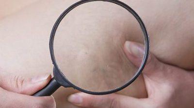 Cómo evitar las varices durante el embarazo