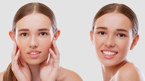 Cómo corregir las orejas de soplillo sin pasar por quirófano