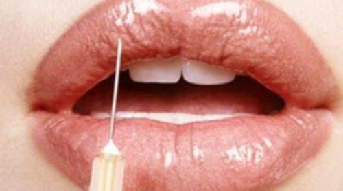 Aumento de labios: tipos de operaciones y riesgos
