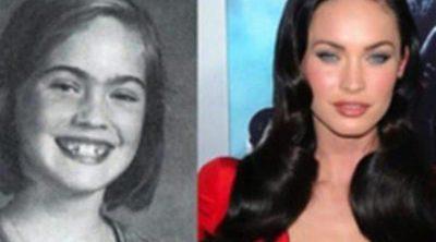 Famosas y cirugía: el paso del tiempo también afecta a las celebrities