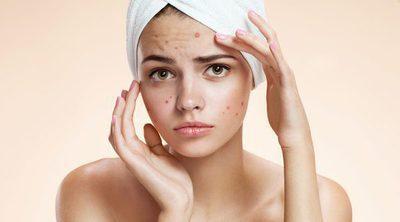 Cómo cuidar la cara con acné en verano