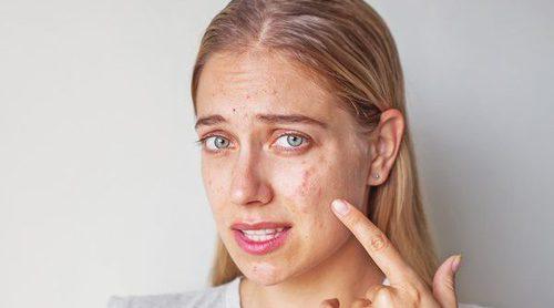 Cómo maquillarse para ocultar las petequias
