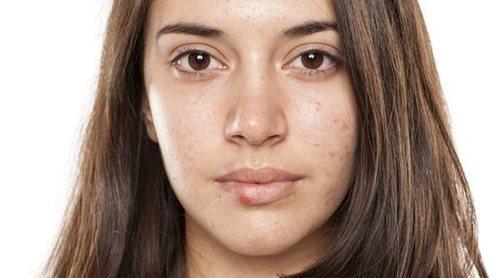 Herpes en la cara: tratamiento y prevención
