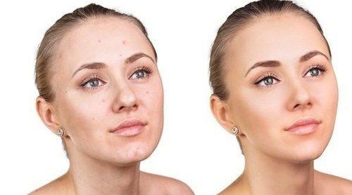 Beneficios de la sandía para la piel