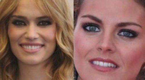 La sonrisa de las celebrities: el antes y el después tras su paso por el dentista