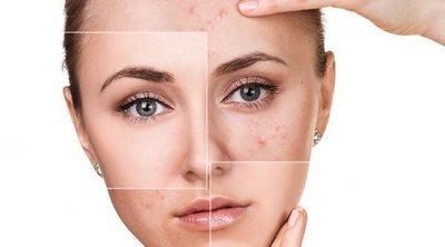 Cómo cuidar la piel con manchas