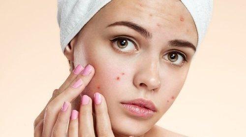 Cómo maquillarse cuando tienes acné