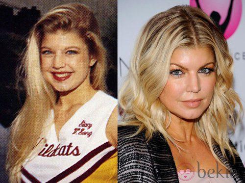 El antes y el después de Fergie