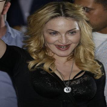 Madonna presume de dientes de oro