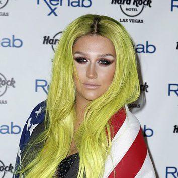 Kesha se pasa con el amarillo y con las raíces